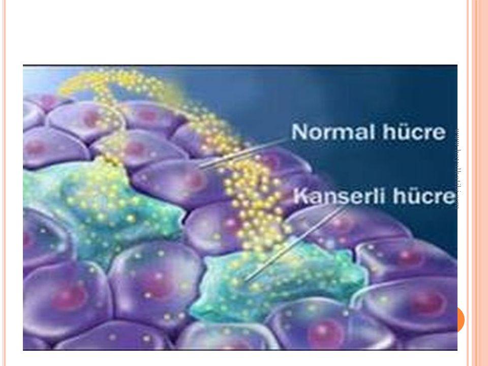 LENFOMA(LENF KANSERİ) Lenf Kanseri Lenfoma Belirtileri Tedavisi Lenfoma, onkolojik hastalıklar içinde yaşamın uzatılması ve daha kaliteli yaşam sağlanması ve hastaların kurtarılmaları açısından daha fazla başarı elde edilmiş bir hastalıktır.