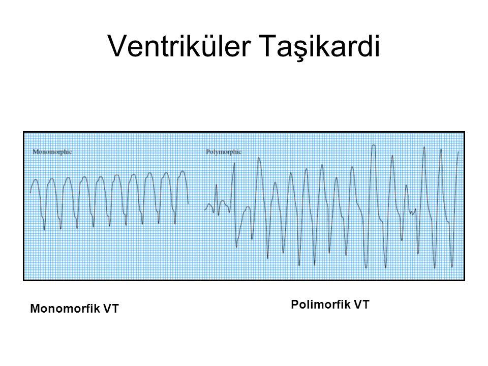 Ventriküler Taşikardi Monomorfik VT Polimorfik VT