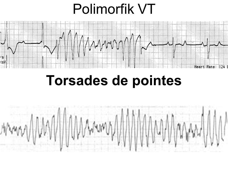 Polimorfik VT Torsades de pointes