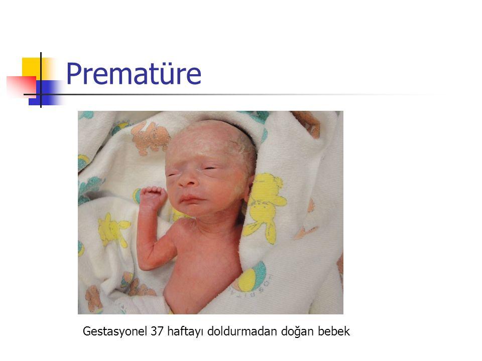 Prematüre Gestasyonel 37 haftayı doldurmadan doğan bebek