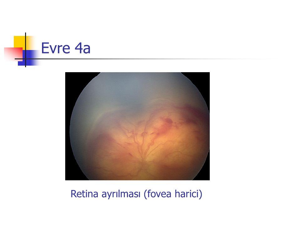 Evre 4a Retina ayrılması (fovea harici)