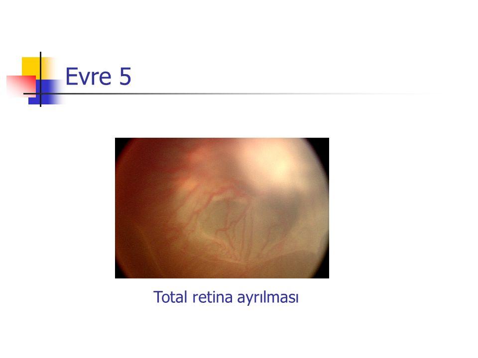 Evre 5 Total retina ayrılması
