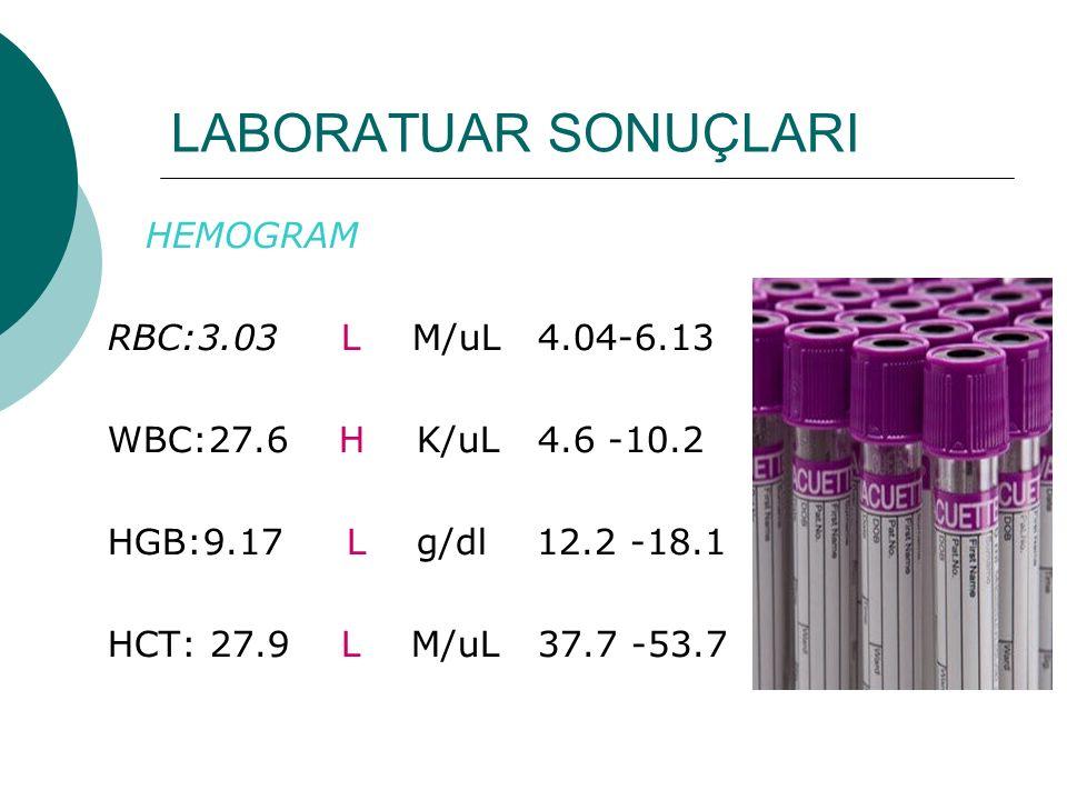 LABORATUAR SONUÇLARI HEMOGRAM RBC:3.03 L M/uL 4.04-6.13 WBC:27.6 H K/uL 4.6 -10.2 HGB:9.17 L g/dl 12.2 -18.1 HCT: 27.9 L M/uL 37.7 -53.7