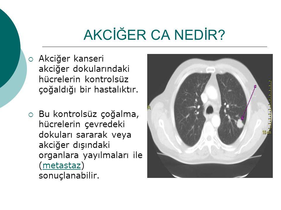 AKCİĞER CA NEDİR?  Akciğer kanseri akciğer dokularındaki hücrelerin kontrolsüz çoğaldığı bir hastalıktır.  Bu kontrolsüz çoğalma, hücrelerin çevrede