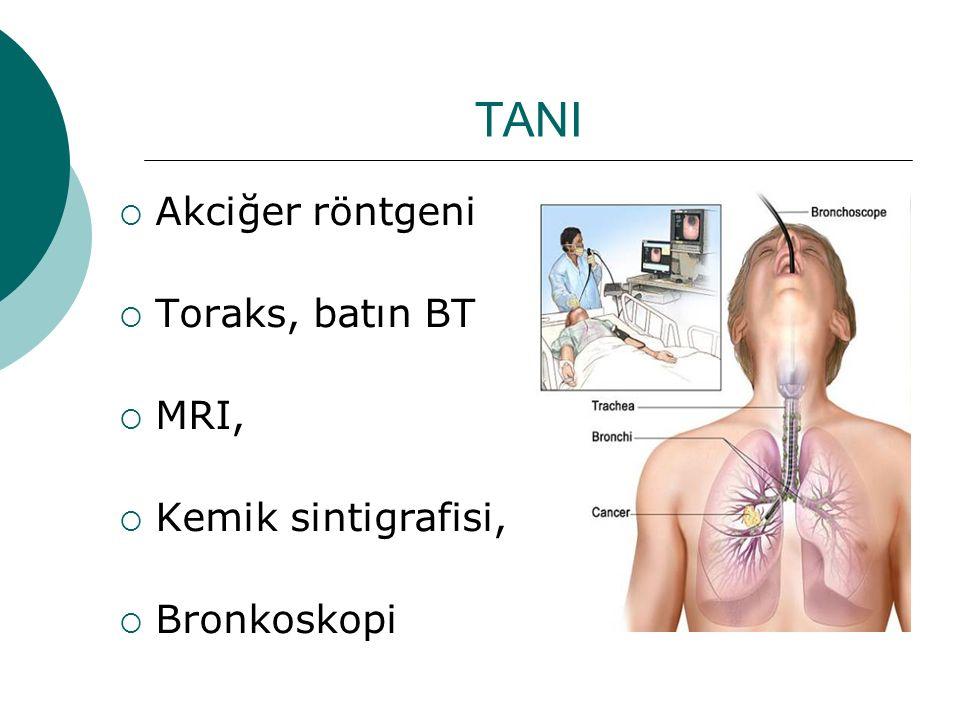 TANI  Akciğer röntgeni  Toraks, batın BT  MRI,  Kemik sintigrafisi,  Bronkoskopi