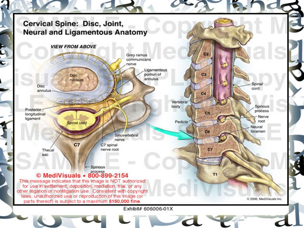 Kanser Kronik ağrı, geçmeyen gece ağrılarında akla gelmeli Akciğer, meme, prostat, multipl myelom, lenfoma Epidural bası en çok torasik (%70) olsa da servikal veya multipl tutulum (%10) nadir değildir Düz grafilerin sensivitesi kötüdür.