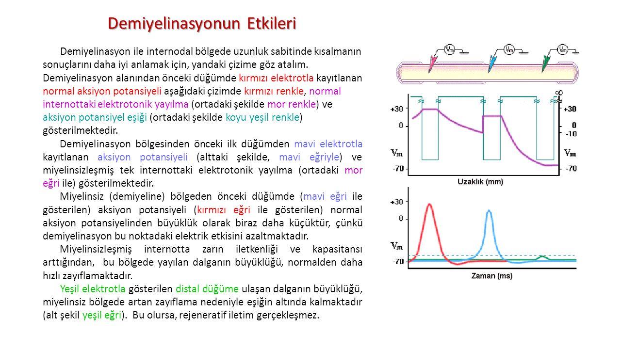 Demiyelinasyon ile internodal bölgede uzunluk sabitinde kısalmanın sonuçlarını daha iyi anlamak için, yandaki çizime göz atalım. Demiyelinasyon alanın