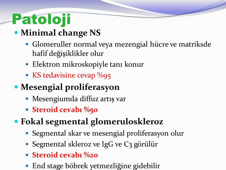Patoloji Minimal change NS Glomeruller normal veya mezengial hücre ve matriksde hafif değişiklikler olur Elektron mikroskopiyle tanı konur KS tedavisi