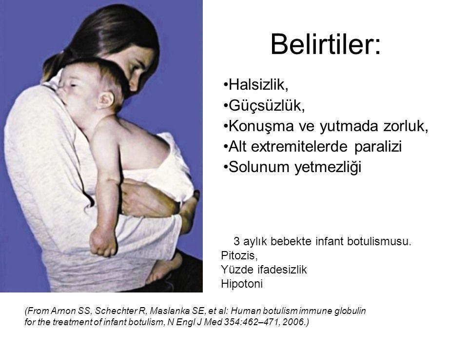 Belirtiler: 3 aylık bebekte infant botulismusu. Pitozis, Yüzde ifadesizlik Hipotoni (From Arnon SS, Schechter R, Maslanka SE, et al: Human botulism im
