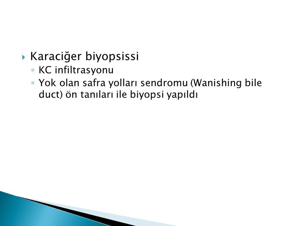  Karaciğer biyopsissi ◦ KC infiltrasyonu ◦ Yok olan safra yolları sendromu (Wanishing bile duct) ön tanıları ile biyopsi yapıldı