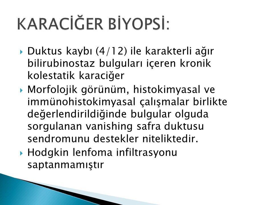  Duktus kaybı (4/12) ile karakterli ağır bilirubinostaz bulguları içeren kronik kolestatik karaciğer  Morfolojik görünüm, histokimyasal ve immünohis