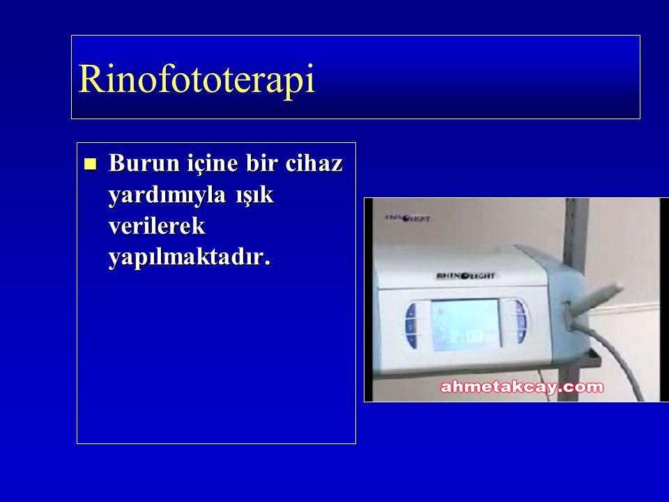 Burun içine bir cihaz yardımıyla ışık verilerek yapılmaktadır. Burun içine bir cihaz yardımıyla ışık verilerek yapılmaktadır. Rinofototerapi