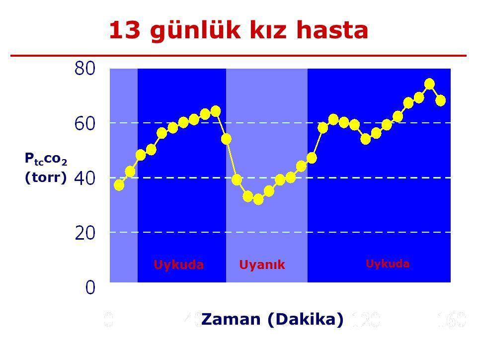 13 günlük kız hasta Zaman (Dakika) P tc co 2 (torr) Uykuda Uyanık