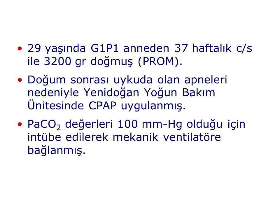 29 yaşında G1P1 anneden 37 haftalık c/s ile 3200 gr doğmuş (PROM). Doğum sonrası uykuda olan apneleri nedeniyle Yenidoğan Yoğun Bakım Ünitesinde CPAP