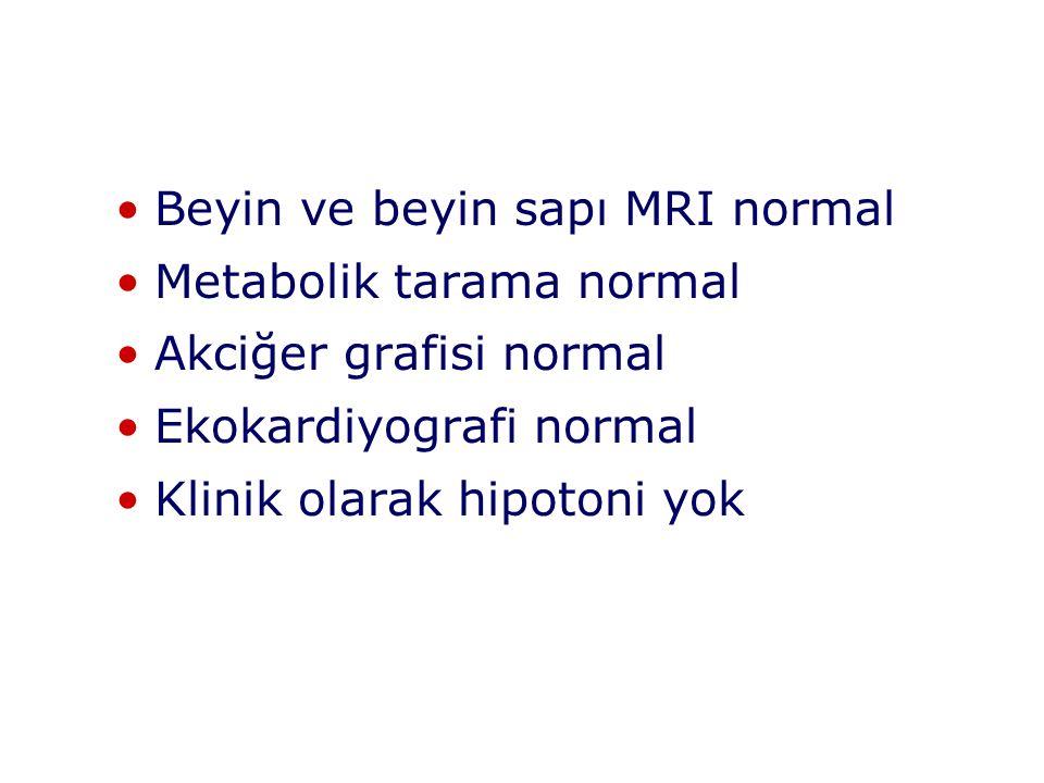 Beyin ve beyin sapı MRI normal Metabolik tarama normal Akciğer grafisi normal Ekokardiyografi normal Klinik olarak hipotoni yok