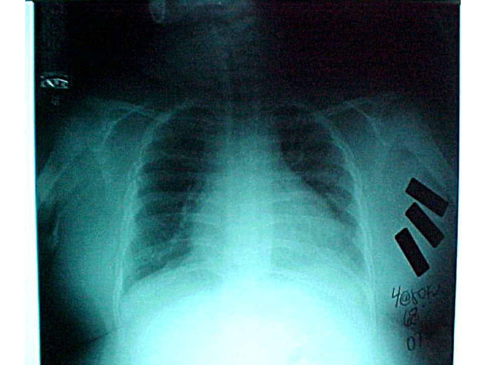 Hipoventilasyon Zaman (saniye) TcpCO 2 TcpO 2 EOG EKG Toraks ABD Akım PetCO 2 SpO 2 Horlama EMG EEG