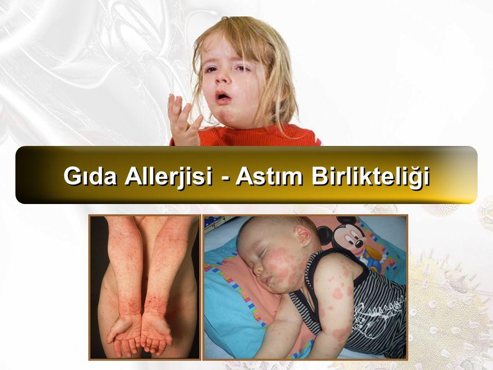 Gıda allerjisi ile ilgili kohort çalışmanın devamı, 567 çocuk, <6 yaş ve ≥6 yaş diye 2 grup Gıda allerjisi tanısı: Klinik, sp IgE, deri testi (Yumurta, susam, süt, buğday, balık, fıstık, soya, karides, fındık) Astım tanısı: Ailenin bildirimi (Doktor tanılı) Semptomatik gıda allerjisi olan çocuklarda astım daha sık ve daha erken ortaya çıkmakta Ağır ve çoklu gıda allerjilerinde ilişkili daha da anlamlı Asemptomatik gıda duyarlılığı ile ilişki yok