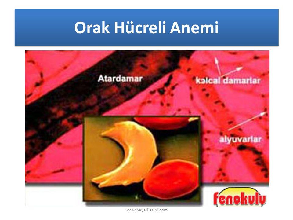 Orak Hücreli Anemi www.hayalkatibi.com