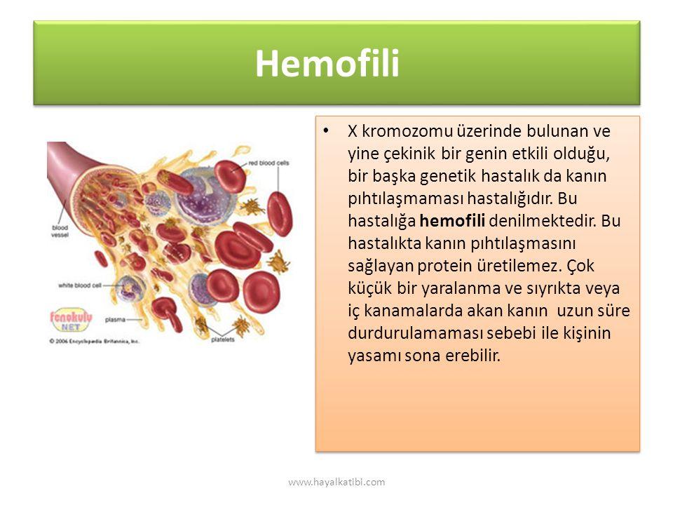 Hemofili X kromozomu üzerinde bulunan ve yine çekinik bir genin etkili olduğu, bir başka genetik hastalık da kanın pıhtılaşmaması hastalığıdır.