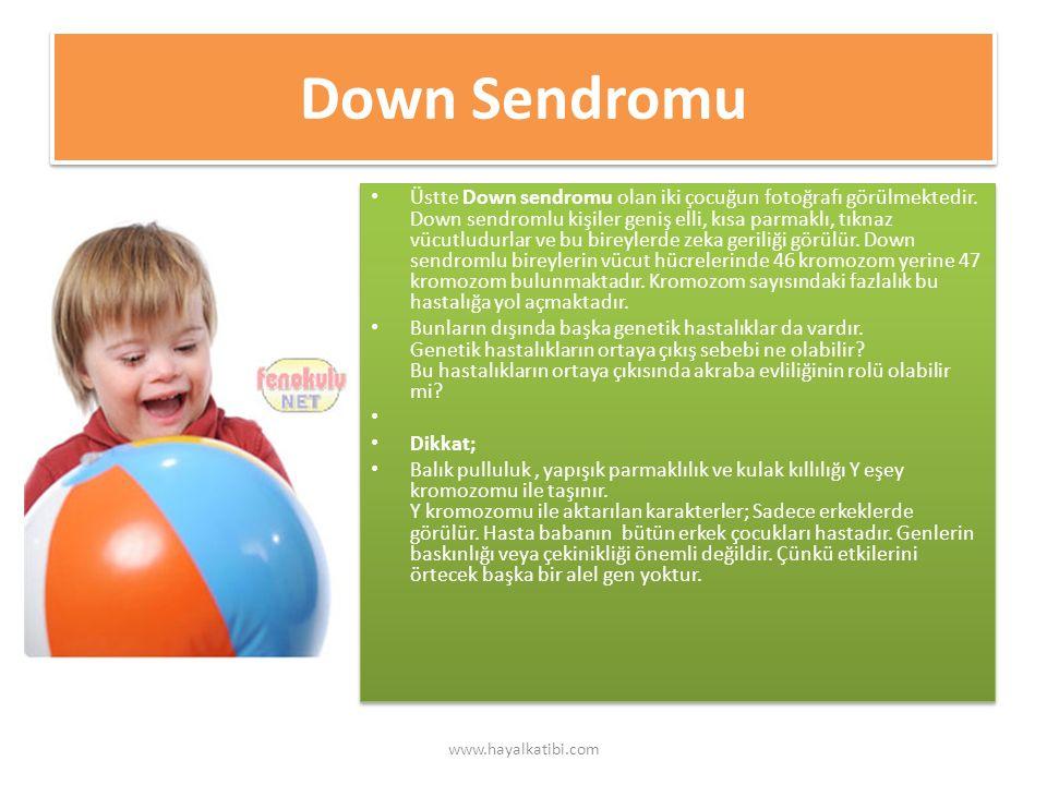 Down Sendromu Üstte Down sendromu olan iki çocuğun fotoğrafı görülmektedir.