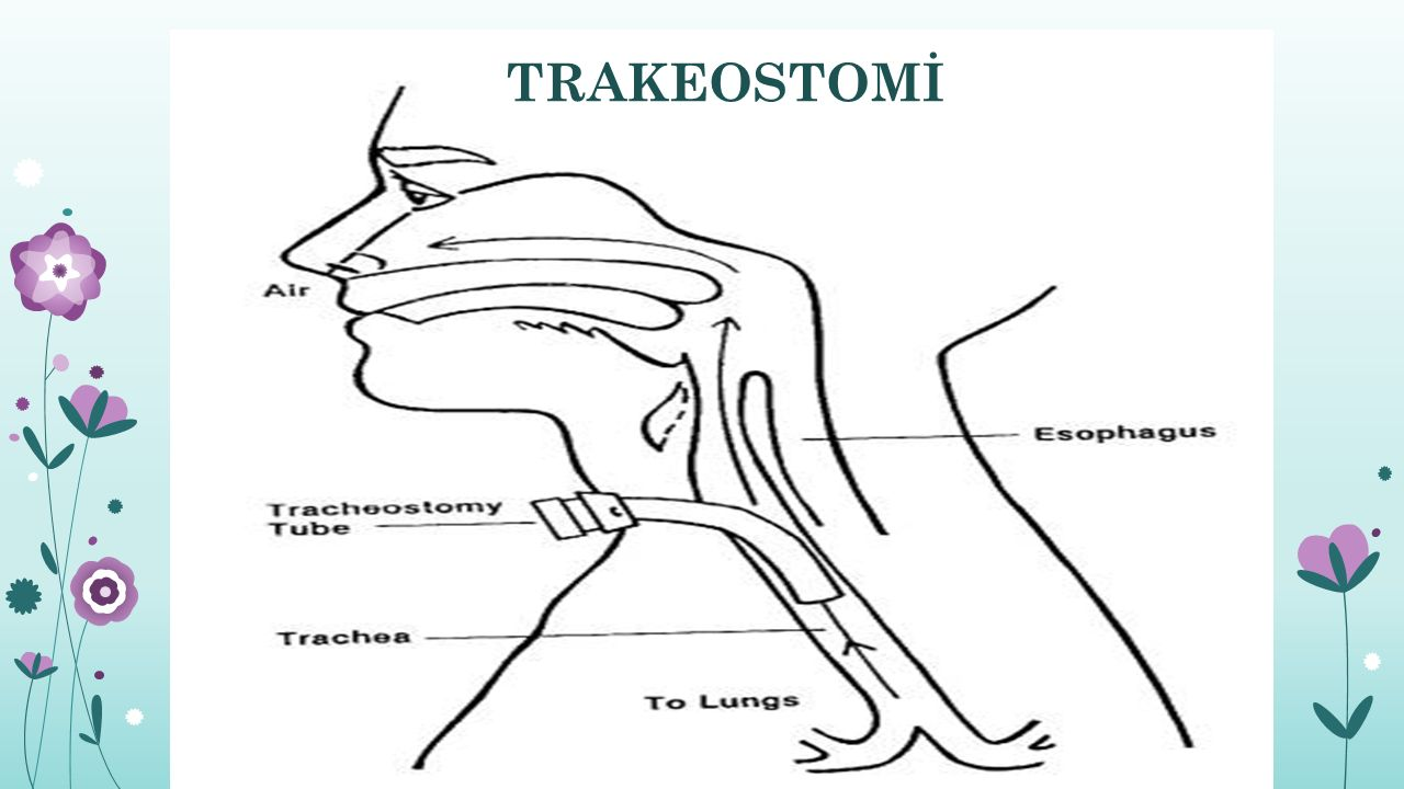 TRAKEOSTOMİ'Lİ HASTA
