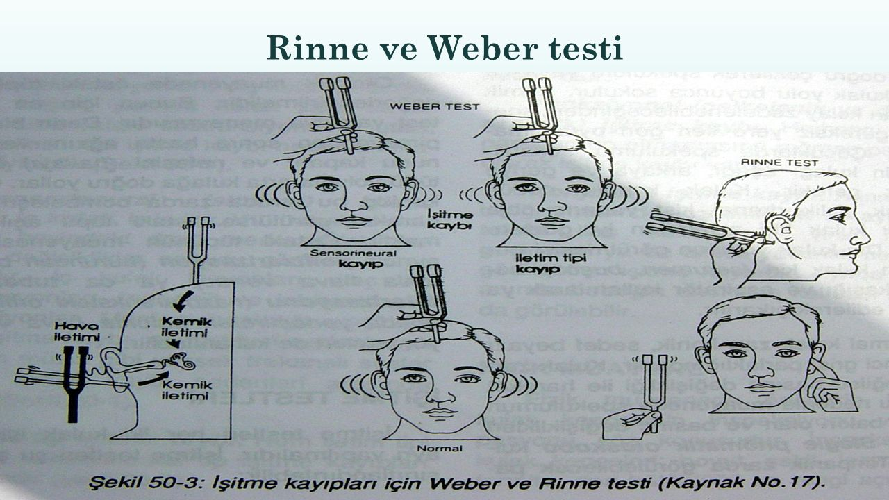 Rinne ve Weber testi