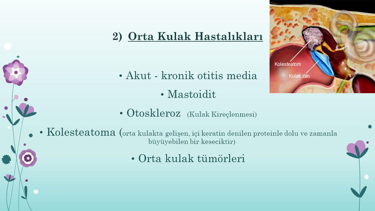 2)Orta Kulak Hastalıkları Akut - kronik otitis media Mastoidit Otoskleroz (Kulak Kireçlenmesi) Kolesteatoma ( orta kulakta gelişen, içi keratin denilen proteinle dolu ve zamanla büyüyebilen bir keseciktir) Orta kulak tümörleri