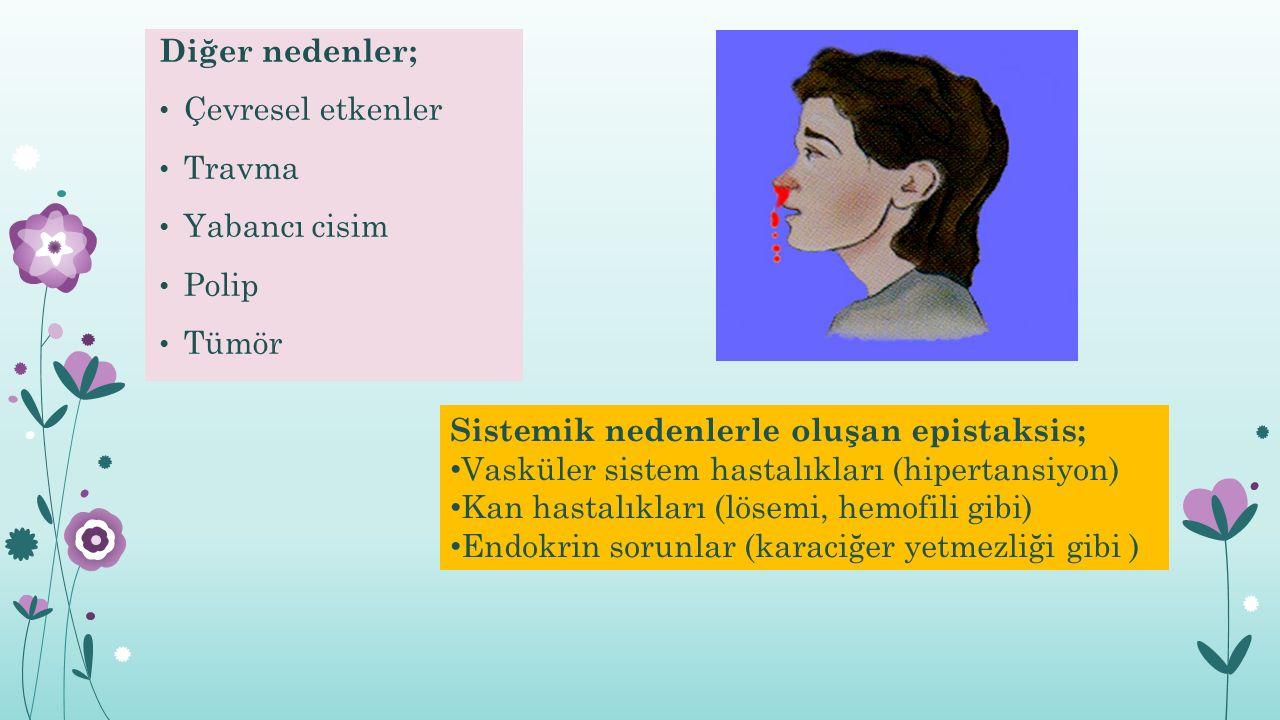 Diğer nedenler; Çevresel etkenler Travma Yabancı cisim Polip Tümör Sistemik nedenlerle oluşan epistaksis; Vasküler sistem hastalıkları (hipertansiyon)