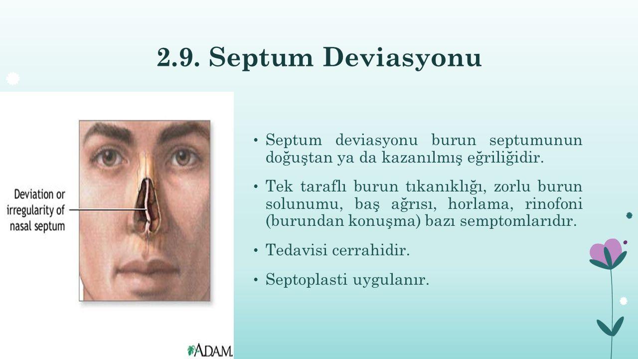 2.9. Septum Deviasyonu Septum deviasyonu burun septumunun doğuştan ya da kazanılmış eğriliğidir. Tek taraflı burun tıkanıklığı, zorlu burun solunumu,