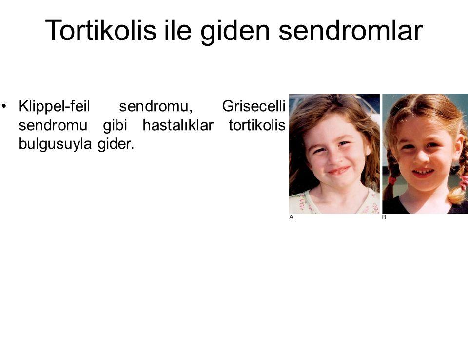 Tortikolis ile giden sendromlar Klippel-feil sendromu, Grisecelli sendromu gibi hastalıklar tortikolis bulgusuyla gider.