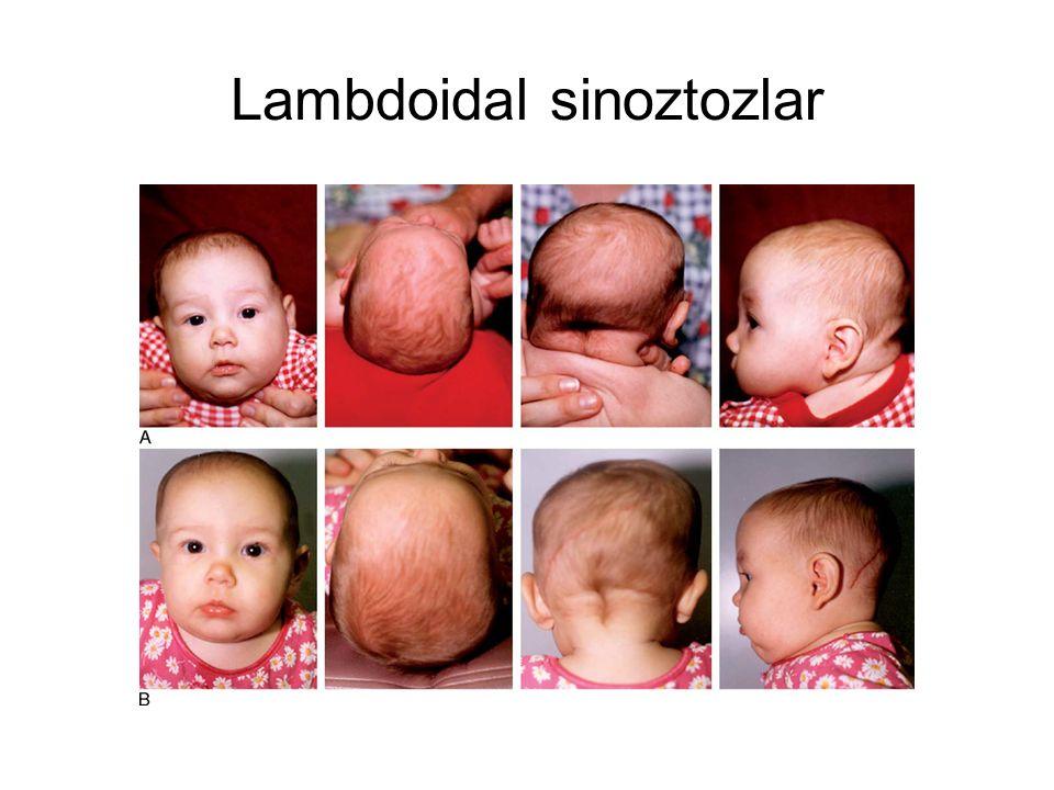 Lambdoidal sinoztozlar