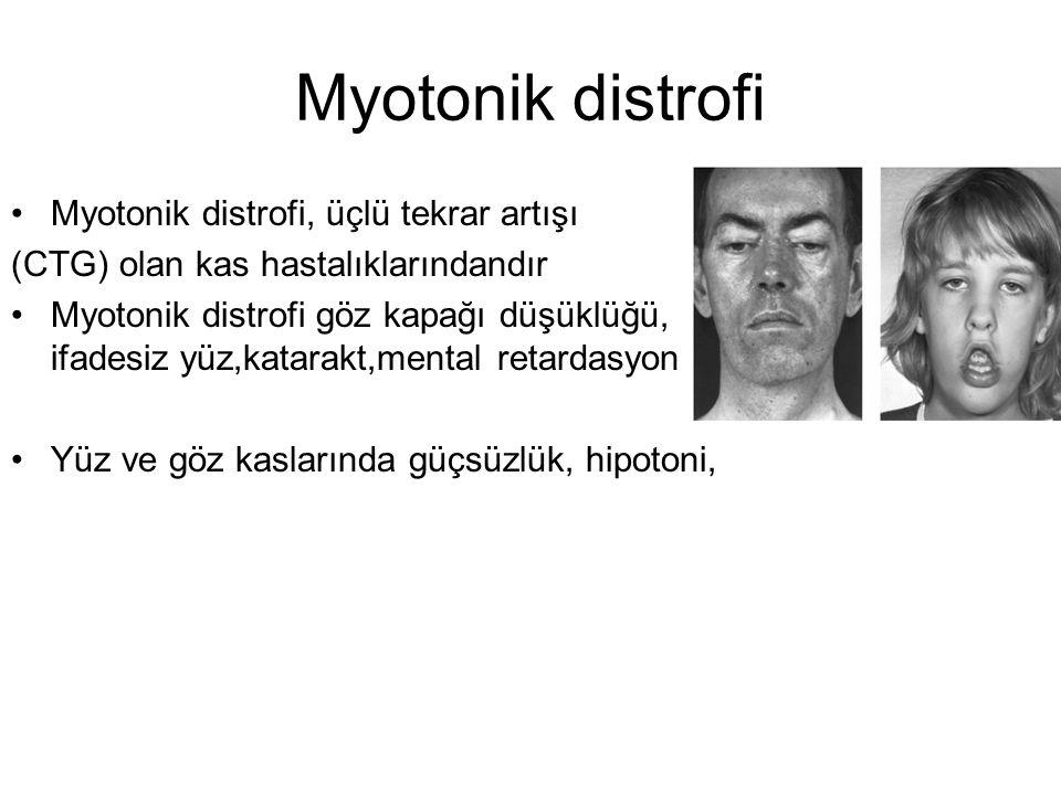 Myotonik distrofi Myotonik distrofi, üçlü tekrar artışı (CTG) olan kas hastalıklarındandır Myotonik distrofi göz kapağı düşüklüğü, ifadesiz yüz,katarakt,mental retardasyon Yüz ve göz kaslarında güçsüzlük, hipotoni,