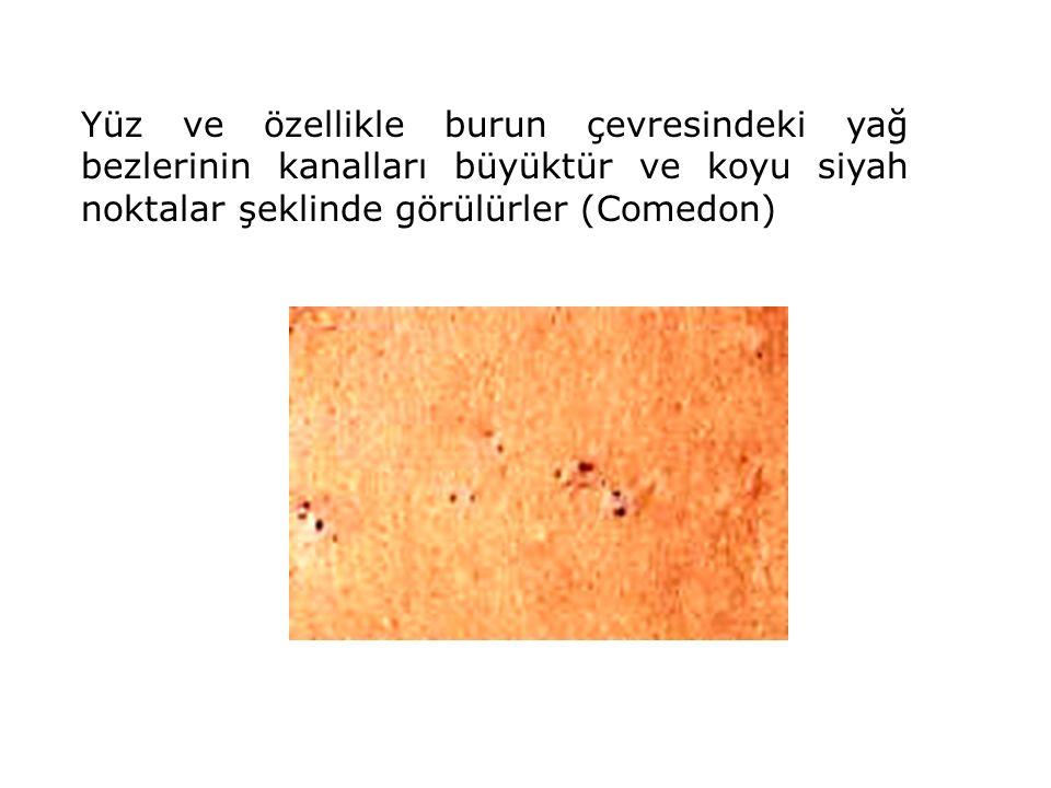 Yüz ve özellikle burun çevresindeki yağ bezlerinin kanalları büyüktür ve koyu siyah noktalar şeklinde görülürler (Comedon)