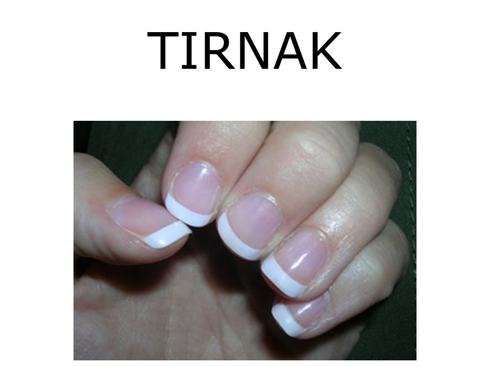 TIRNAK