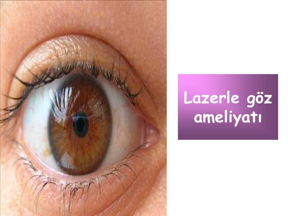 Lazerle göz ameliyatı