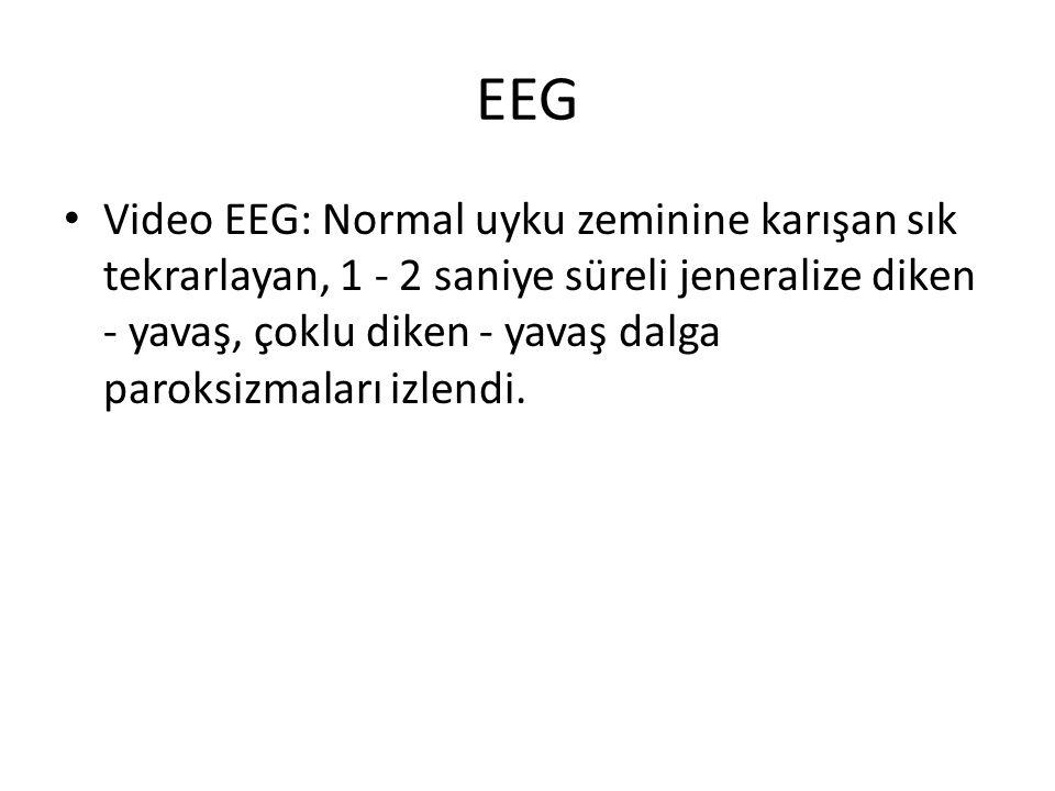 EEG Video EEG: Normal uyku zeminine karışan sık tekrarlayan, 1 - 2 saniye süreli jeneralize diken - yavaş, çoklu diken - yavaş dalga paroksizmaları izlendi.