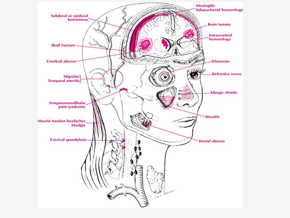 Ağrıya hassas olmayan yapılar  Nosiseptör bulunmayan yapılar : Beyin parankiması Beyin parankiması Pia ve araknoid Pia ve araknoid Konveksiteyi örten dura Konveksiteyi örten dura Koroid pleksuslar Koroid pleksuslar