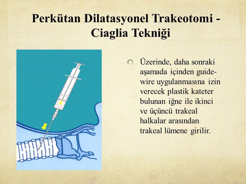 Perkütan Dilatasyonel Trakeotomi - Ciaglia Tekniği Üzerinde, daha sonraki aşamada içinden guide- wire uygulanmasına izin verecek plastik kateter bulunan iğne ile ikinci ve üçüncü trakeal halkalar arasından trakeal lümene girilir.