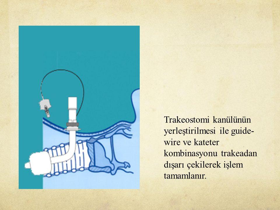 Trakeostomi kanülünün yerleştirilmesi ile guide- wire ve kateter kombinasyonu trakeadan dışarı çekilerek işlem tamamlanır.
