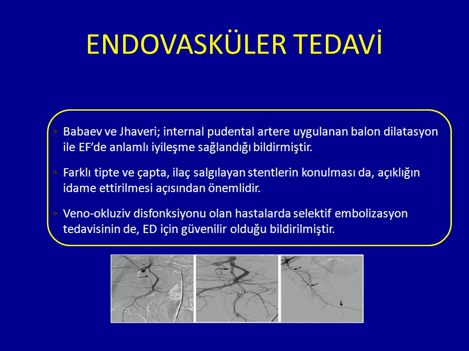 ENDOVASKÜLER TEDAVİ Babaev ve Jhaveri; internal pudental artere uygulanan balon dilatasyon ile EF'de anlamlı iyileşme sağlandığı bildirmiştir.