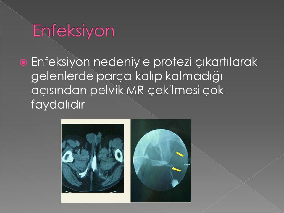  Enfeksiyon nedeniyle protezi çıkartılarak gelenlerde parça kalıp kalmadığı açısından pelvik MR çekilmesi çok faydalıdır