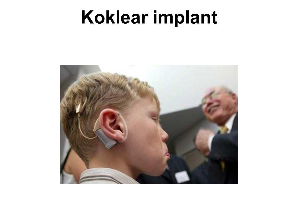 Koklear implant