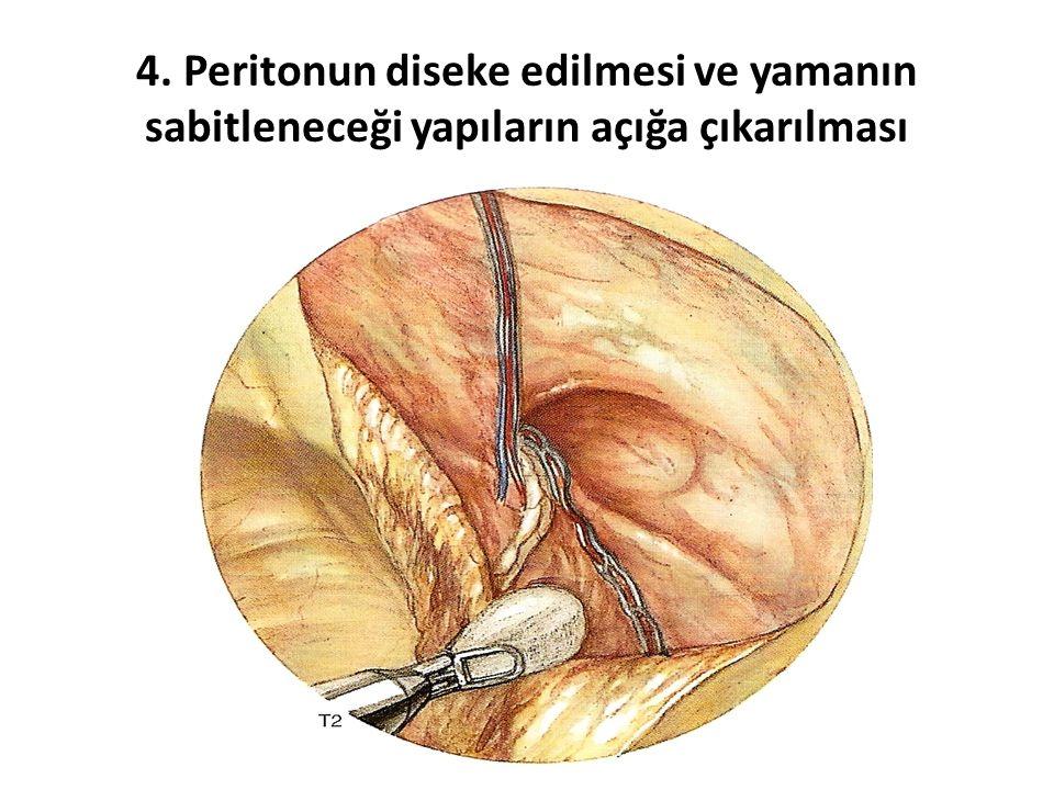 4. Peritonun diseke edilmesi ve yamanın sabitleneceği yapıların açığa çıkarılması