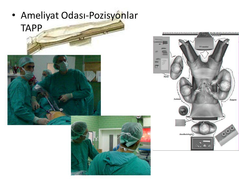 1. Laparoskopik görüş altında trokarların girilmesi (TAPP)