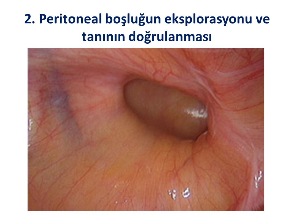 2. Peritoneal boşluğun eksplorasyonu ve tanının doğrulanması