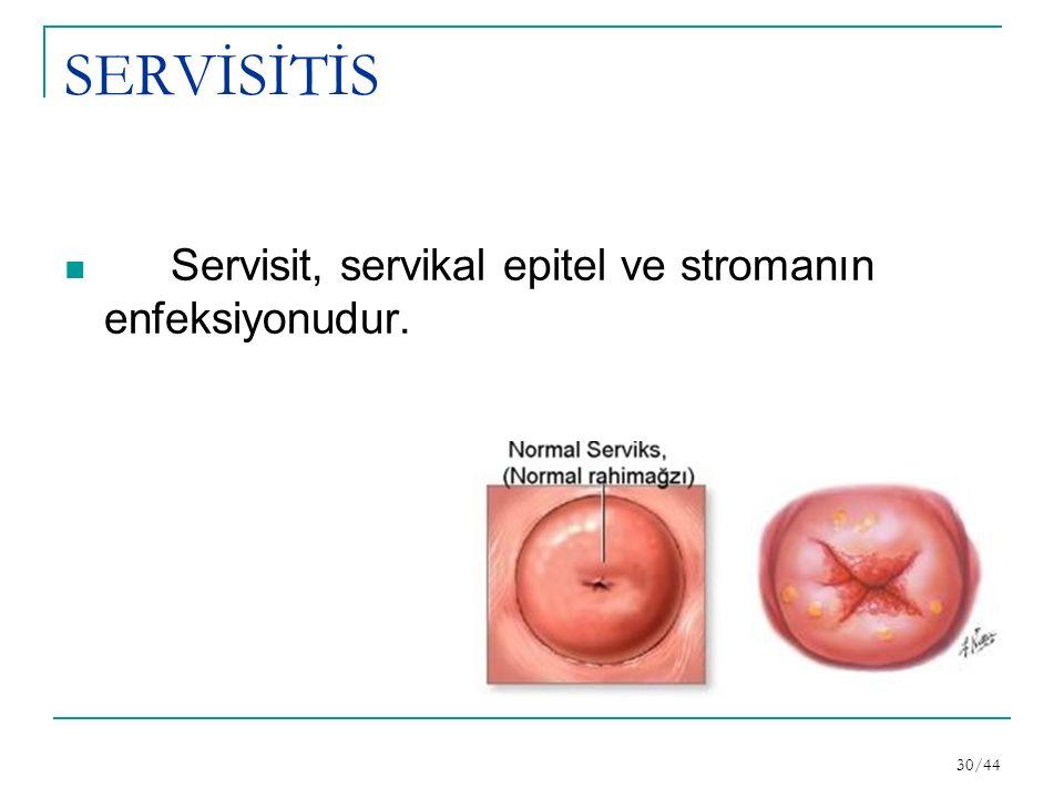 SERVİSİTİS Servisit, servikal epitel ve stromanın enfeksiyonudur. 30/44