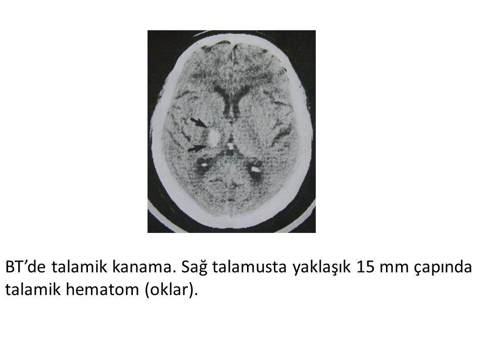 BT'de talamik kanama. Sağ talamusta yaklaşık 15 mm çapında talamik hematom (oklar).