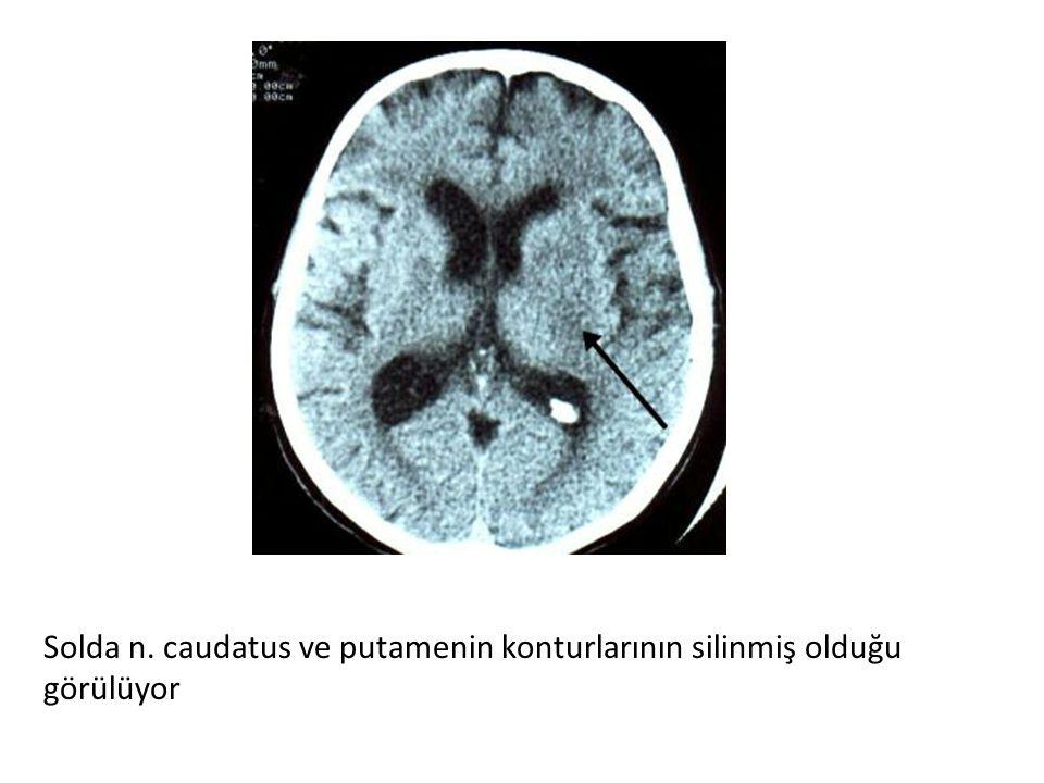 Solda n. caudatus ve putamenin konturlarının silinmiş olduğu görülüyor