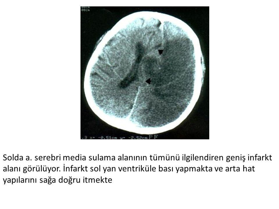 Solda a. serebri media sulama alanının tümünü ilgilendiren geniş infarkt alanı görülüyor. İnfarkt sol yan ventriküle bası yapmakta ve arta hat yapılar