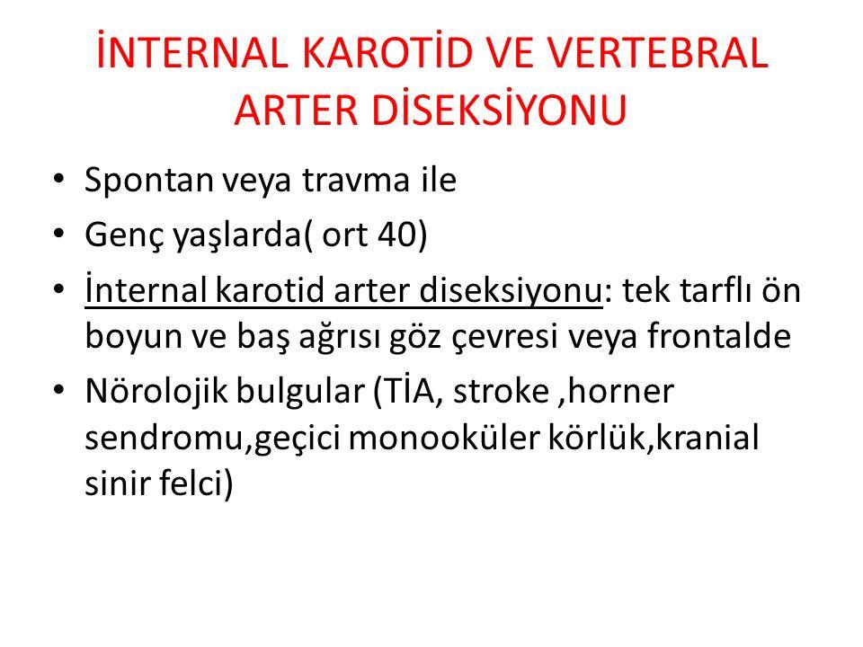 İNTERNAL KAROTİD VE VERTEBRAL ARTER DİSEKSİYONU Spontan veya travma ile Genç yaşlarda( ort 40) İnternal karotid arter diseksiyonu: tek tarflı ön boyun